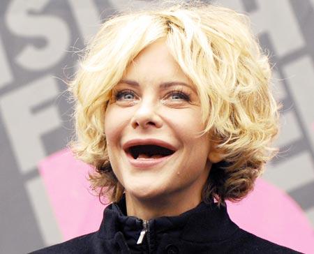 Kuva: Actresseswithoutteeth.net