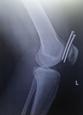 Röntgenkuva
